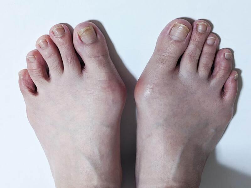 足のトラブルNo.1は・・・