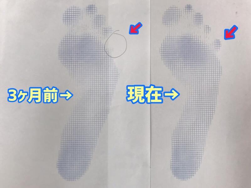 足の指、浮いていませんか?